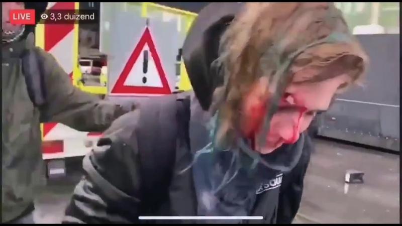 Девушка пострадала от водомета в Нидерландах
