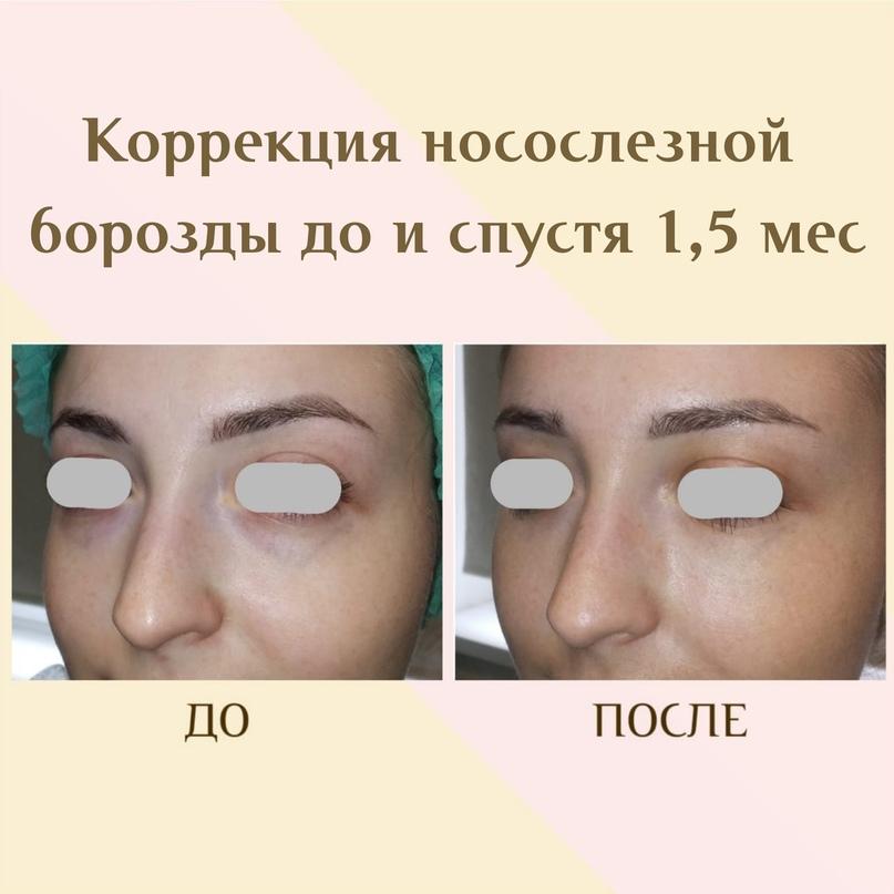 Область глаз. Старение и лечение., изображение №2