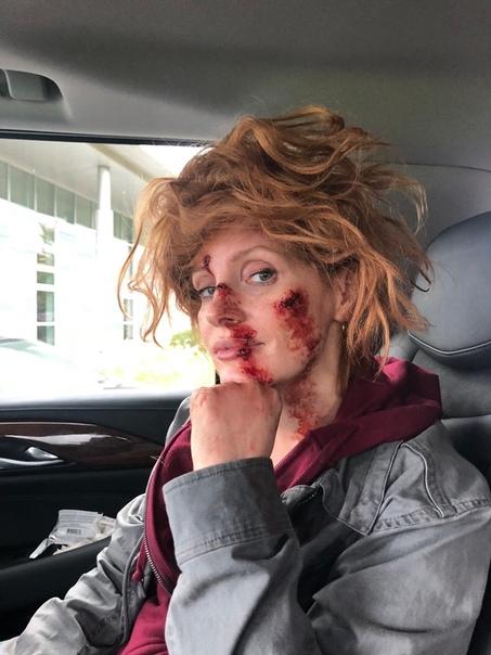 Побитая Джессика Честейн на съемках боевика «Агент Ева»