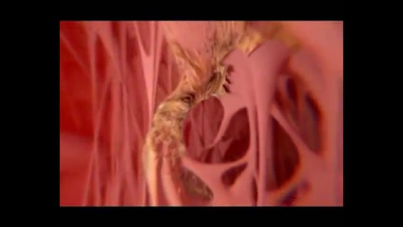 Вплив алкоголю на організм людини (Серце)