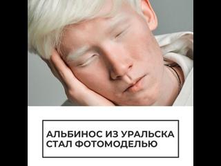 Парень-альбинос стал фотомоделью