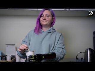Сам себе дизайнер: бионический протез INDY